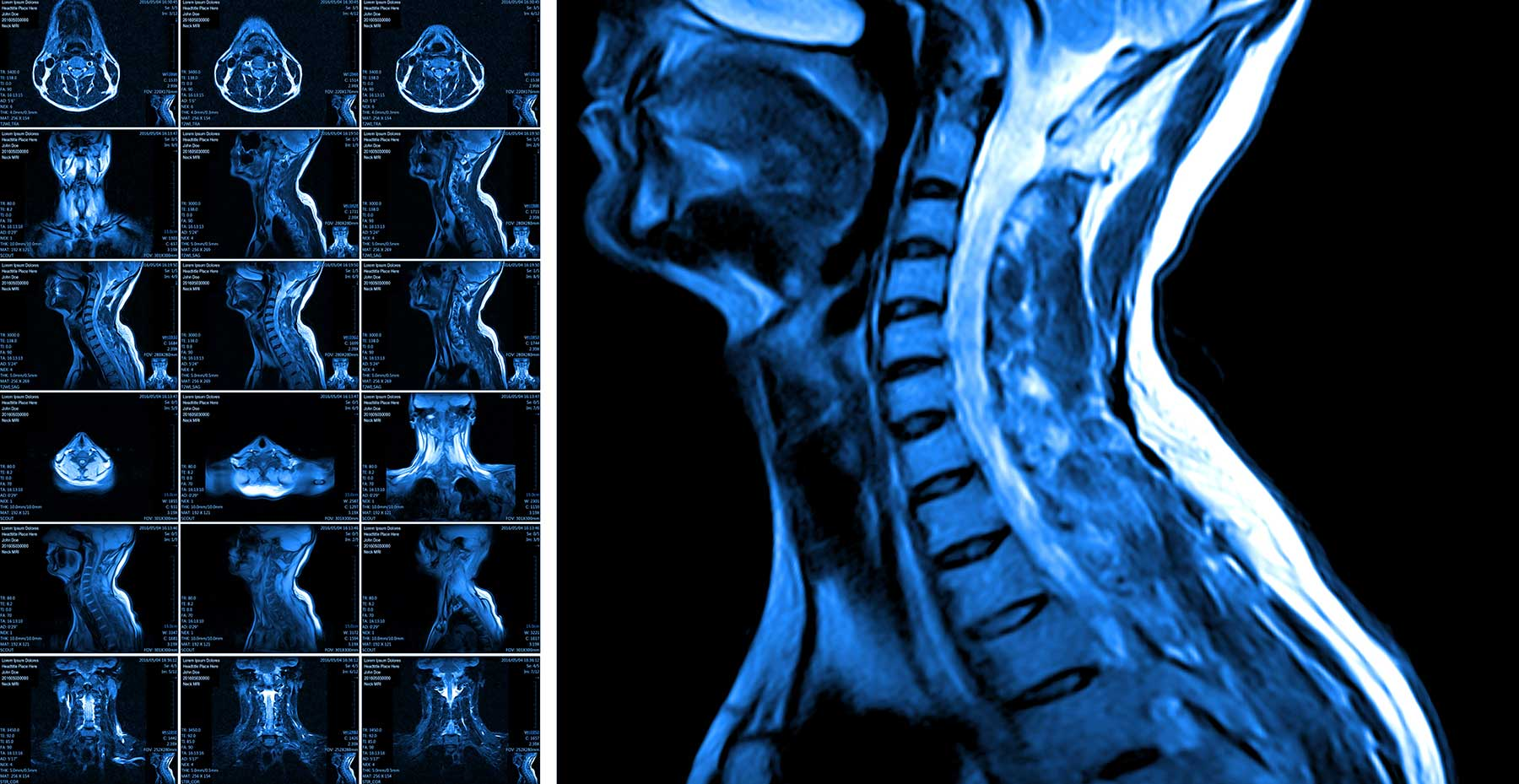 MRI of cervical spine